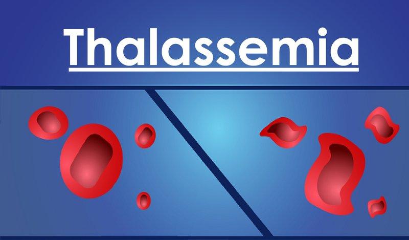 xet-nghiem-thalasemia-de-biet-benh-gi