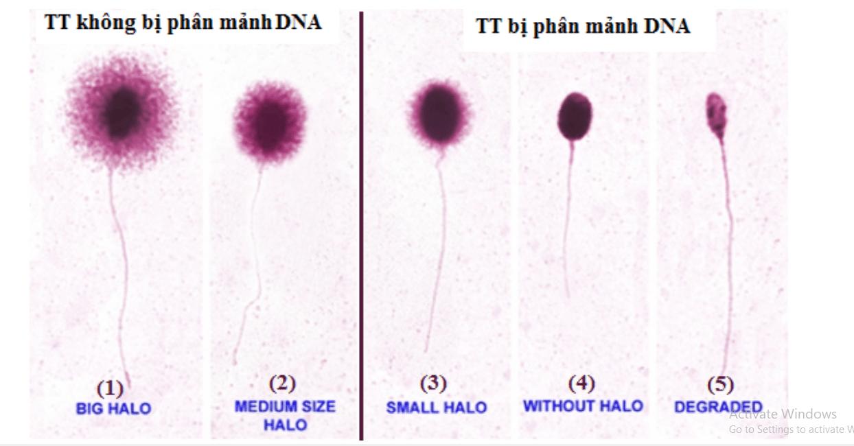 Xet-nghiem-dut-gay-ADN-tinh-trung-